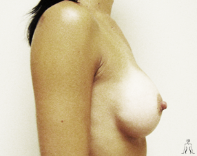 breast.aug_after