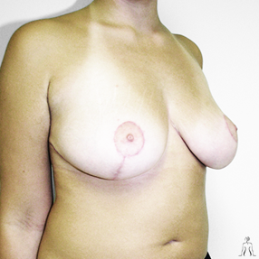 breast.lift_after
