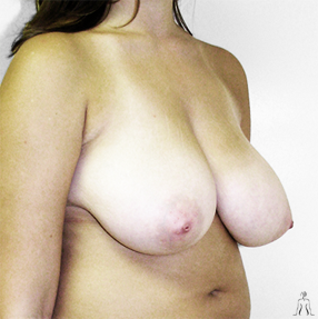 breast.lift_before