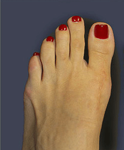 bunion_after