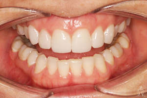 dental_implant_after